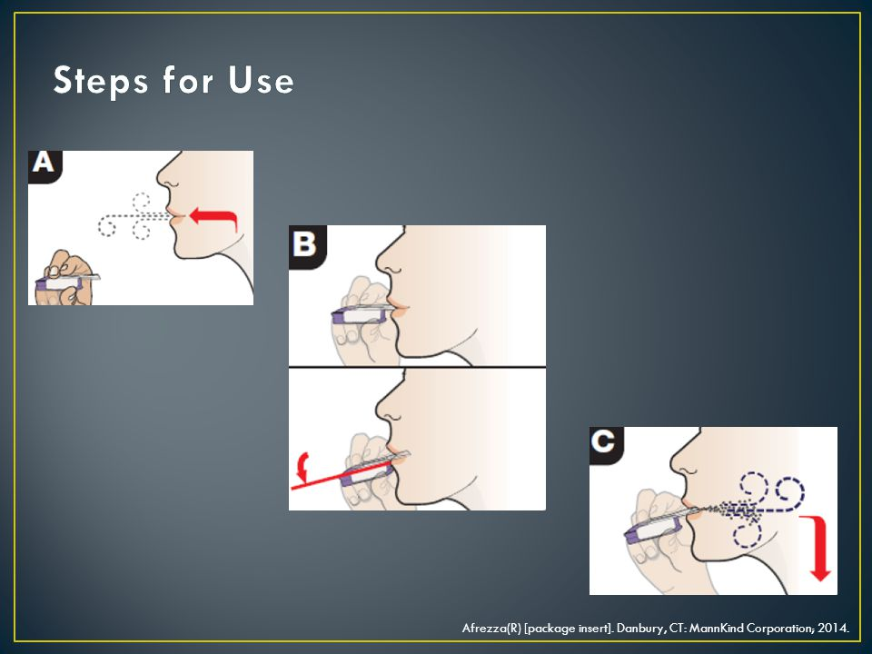 Steps for Use Afrezza(R) [package insert]. Danbury, CT: MannKind Corporation; 2014.